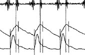 その他血圧脈波検査