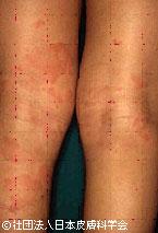 皮膚のトラブル